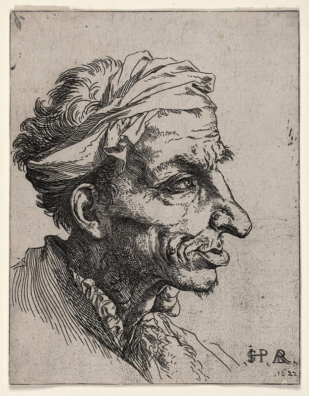 Head of a Man with Goiter